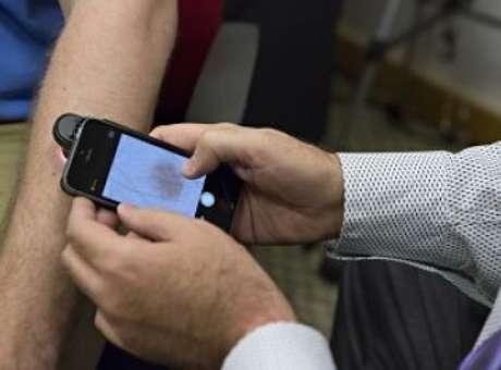 Novo aplicativo pode detectar câncer de pele