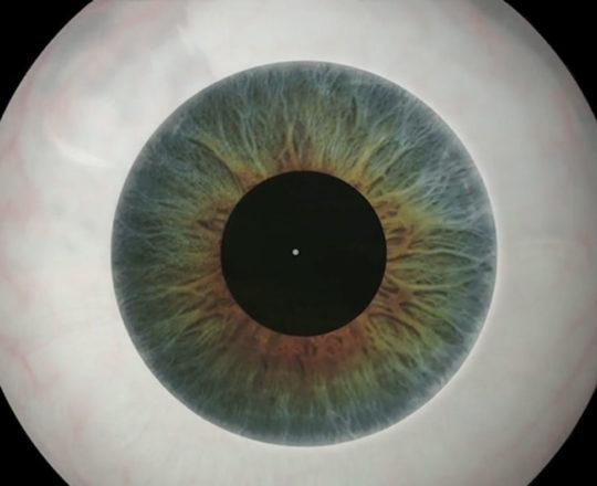 Cresce a sífilis ocular no Brasil