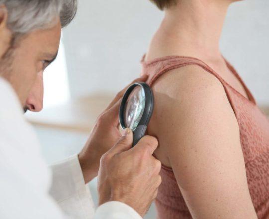 Proteína envolvida em metástase de melanoma e câncer de pulmão é descoberta.