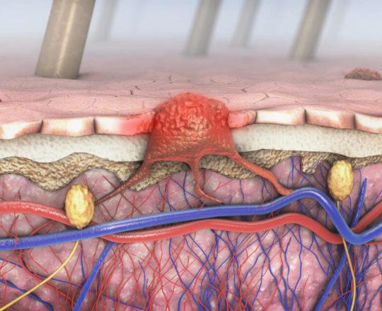 Pesquisadores desenvolvem software para diagnosticar melanoma.