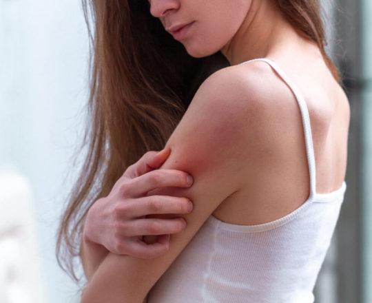 """Dermatite atópica: coceira """"sem fim"""" ataca pele e emocional das pessoas"""
