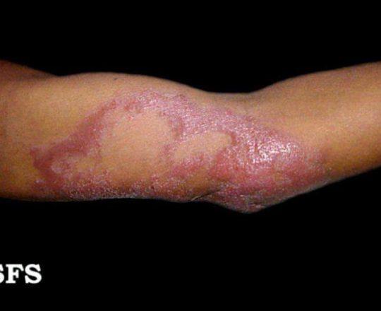 Lesão da forma Dimorfa