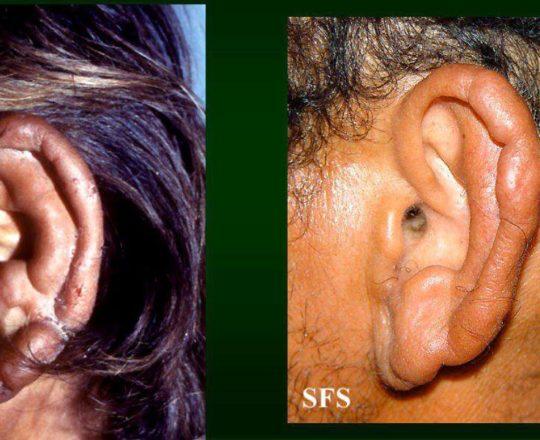 Lesão em pavilhão auricular da forma Lepromatosa