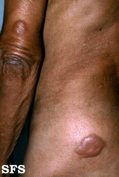 Lesão infiltrada da forma Virchowiana ou Lepromatosa
