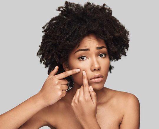 Por que as espinhas tendem a virar manchas escuras na pele negra?