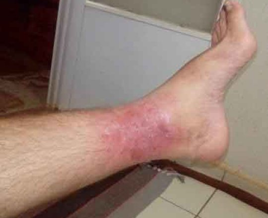 Ex-Goiás, conhecido como Táxi, sofre com erisipela; entenda a doença.