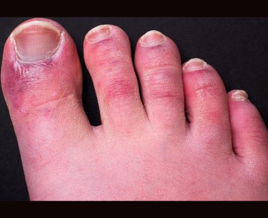 """""""Dedos de covid"""" podem durar até 150 dias em pacientes, mostra estudo"""