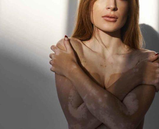Autoaceitação: influenciadores com vitiligo encaram doença sem filtro