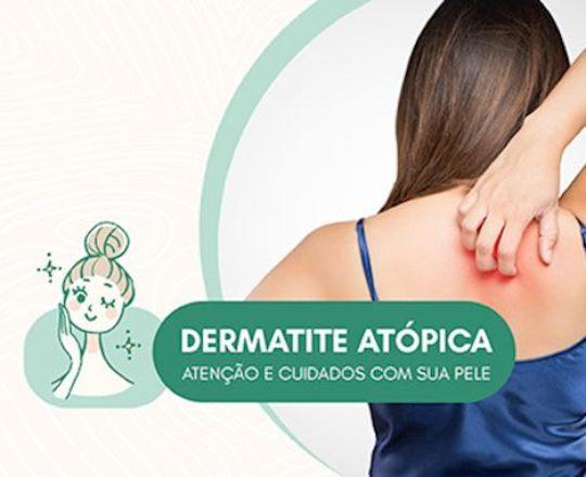 Dermatologistas alertam pais sobre doença que afeta a pele, tira o sono e pode comprometer o processo de aprendizagem das crianças